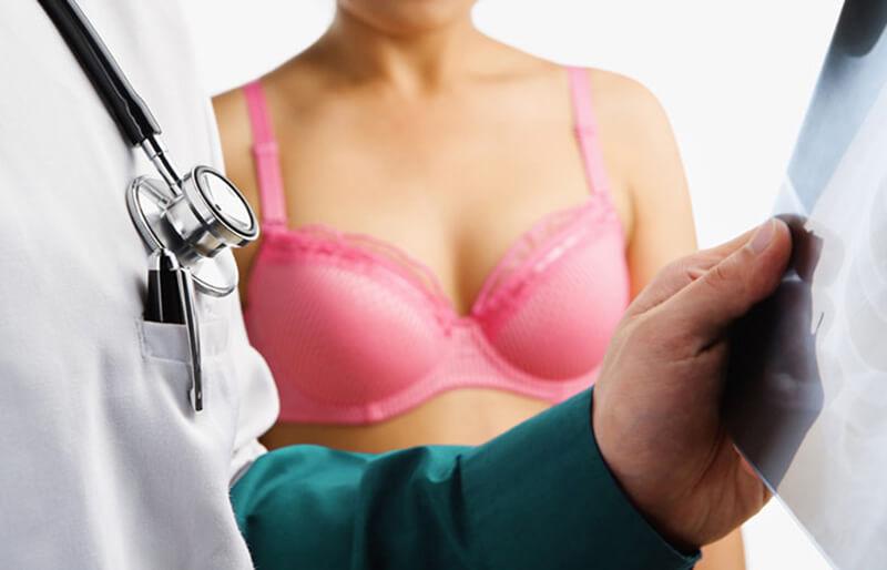 Mặc áo ngực có thể làm giảm đau vú?